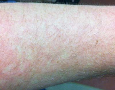 My outer arm is no slouch on this rash action too.